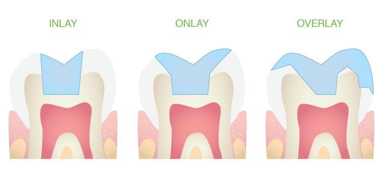 https://identique.net/wp-content/uploads/2019/08/identique-stomatologia-zachowawcza-rekonstrukcja-inlay-onlay-overlay.jpg