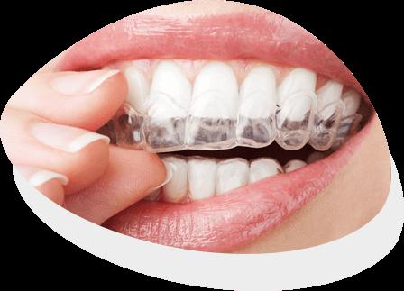 https://identique.net/wp-content/uploads/2019/09/identique-ortodoncja-nakladki-clear-active-aligner-circle.png