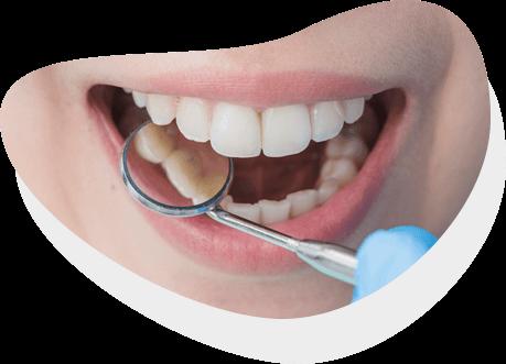 https://identique.net/wp-content/uploads/2019/09/identique-stomatologia-zachowawcza-rekonstrukcja-circle.png